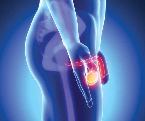 Cómo contraer el roce de la próstata